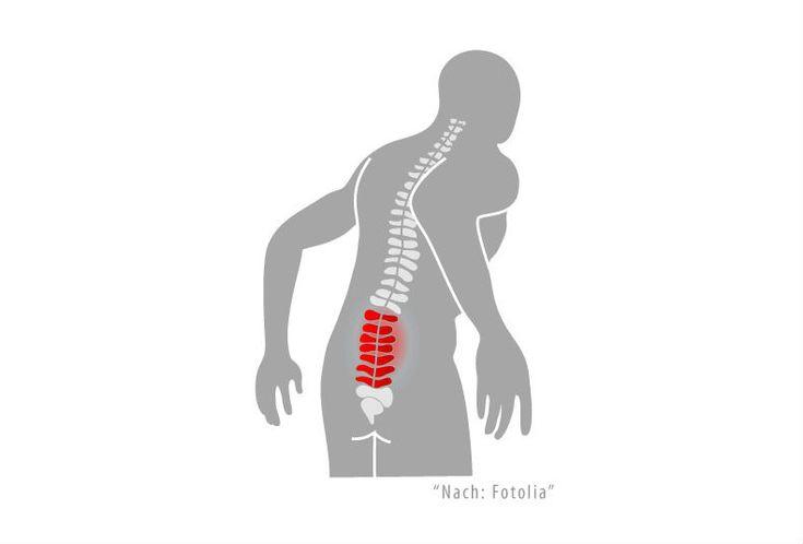 Ischias: Schmerzen & Beschwerden im unteren Rücken?   Joggen Online