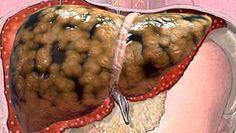 Es bueno que lo apuntes antes de que se borre, medico muestra cómo sacar toda la grasa del hígado en unos días
