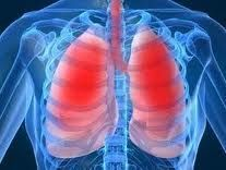 Acute bronchitis is an inflammation or soreness of the bronchi or the airways in the lungs usually due to a virus or bacteria. Bronchitis describes the inflammation of the bronchial tubes