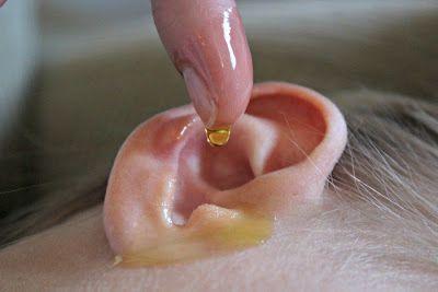 Kuponoldalak Közösségi oldala: Természetes gyógymódok fülgyulladás és fülfájás es...