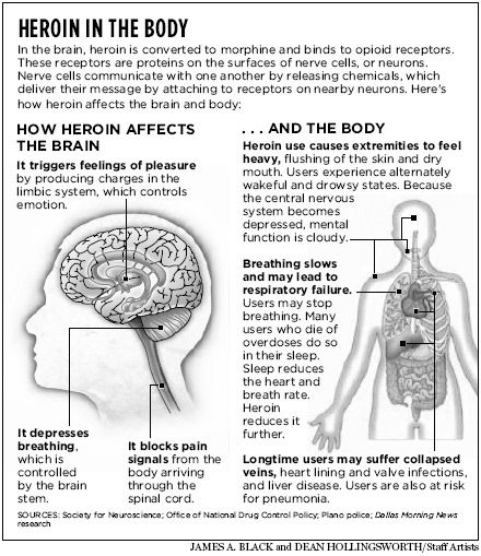 What does heroin do to our body and psyche