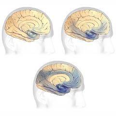 7 stades de la maladie d'Alzheimer : Échelle de détérioration globale de Reisberg