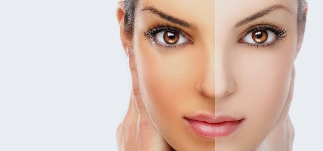 Skin brighteners to eliminate that dull complexion