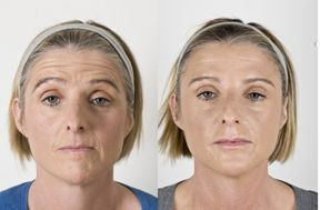Fundamentals Of A Facelift Without Surgery: Harnessing The Might Of Face Gymnastics To Firm Up Face Skin
