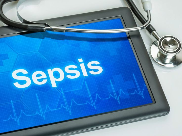 Hey you may find this interesting Time is crucial in preventing fatality caused by sepsis. Read more on https://www.organicfacts.net/nutrition-news/time-is-crucial-in-preventing-fatality-caused-by-sepsis