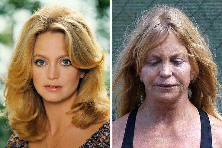 Goldie Hawn Then And Now Ridiculously Extraordinary