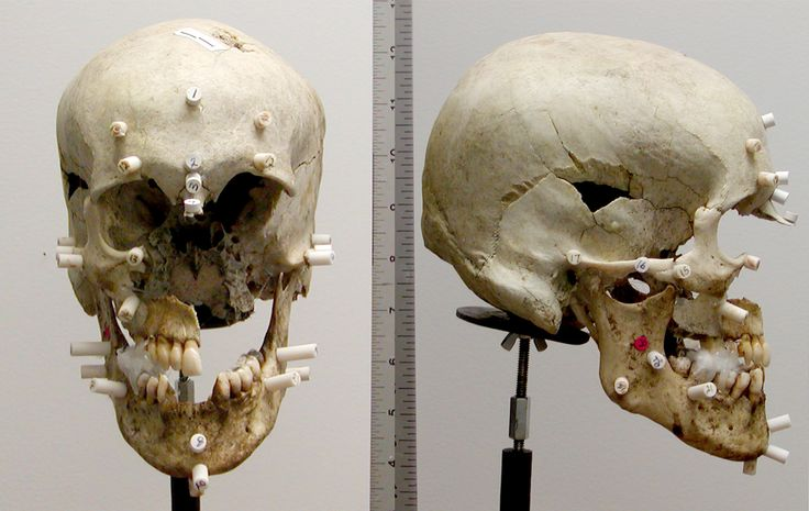 Facial reconstruction cases thanks for