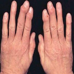 Best Natural Cures For Arthritis In Hands