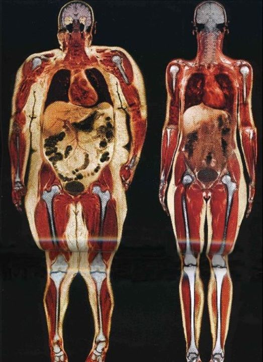 Body scan of 250lb woman and 120lb woman. If this isn't motivation to work out, I don't know what is! I'm NOT implying that a women needs to weigh 120 lbs...that's no where near realistic for some people...but it is about health and longevity and the damage obesity causes. Look at the size of the intestines and stomach; how the knee joints rub together; the enlarged heart; and the fat pockets near the brain. Not good.