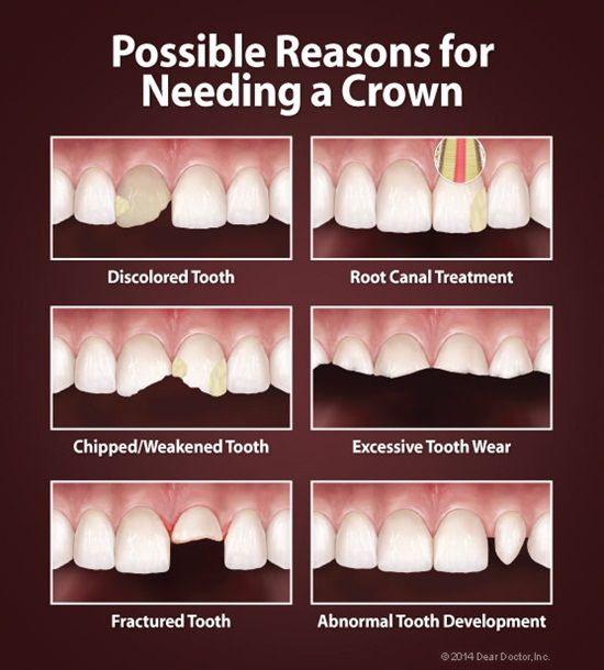 Dentaltown - Possible reasons for needing a crown.