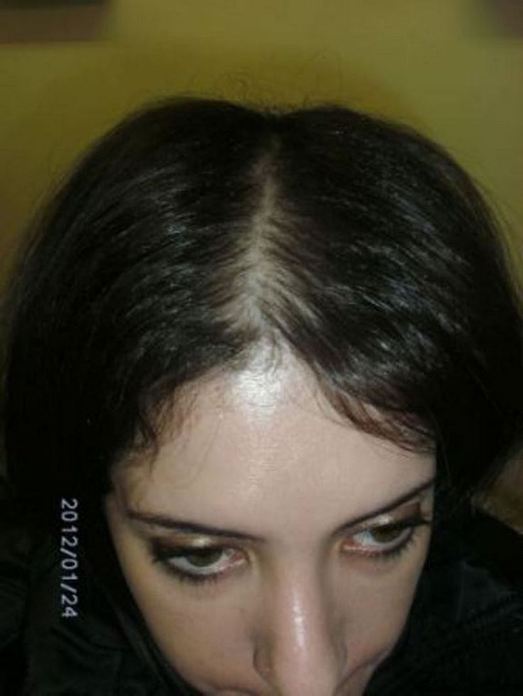 Nizoral Cream for Hair Loss -- You can get additional details at the image link.
