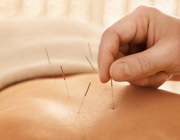 Cupping and Acupuncture for Infertility - Bobbie Thomas No More Whisphers - Redbook