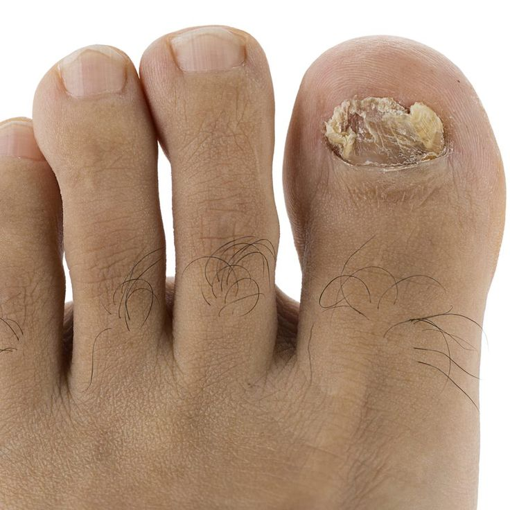 Home remedies using Listerine or Vicks VapoRub may be successful against ugly toenail fungus, and they are cheaper than antifungal drugs.