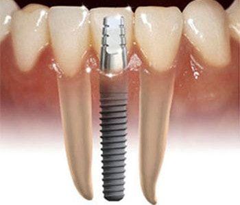 Un implant dentar si veti fi lipsiti de griji in privinta unui zambet sanatos si frumos  Ati auzit de un implant dentar? Daca nu, ar trebui sa va informati cu privire la acesta, intrucat e o solutie moderna si foarte foarte mult apreciata in ultima perioada de catre toti cei care au incercat-o.  E o solutie pentru dintii lipsa, sau mai exact pentru inlocuirea acestora. Mai mult...  https://biz-smart.ro/implant-dentar-si-veti-fi-lipsiti-de-griji-privinta-unui-zambet-sanato