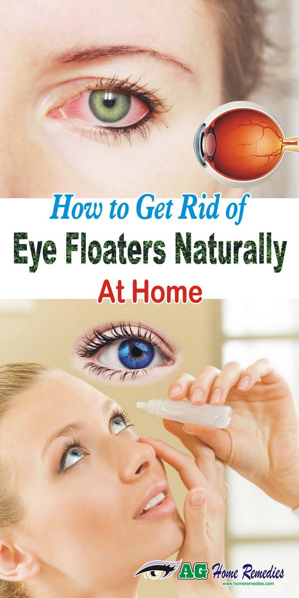 How To Get Rid Of Eye Floaters Naturally At Home Castor Oil For Eyes Eye Floaters Cure Natural Health Tips