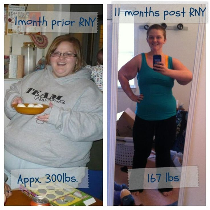 ... gastric bypass, LAP-BAND, and vertical sleeve gastrectomy