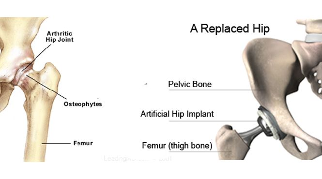 Hip replacement is a surgical procedure in which the hip surface and joints are replaced by a prosthetic implant. The surgery can be performed as either total or hemi (half) replacement. It costs around USD 32,000 in developed countries like the USA while the procedure costs about USD 7,000 in developing countries like India. To get a free quote for an affordable ear treatment, visit:  http://www.medhalt.com/?page_id=2566&preview=true