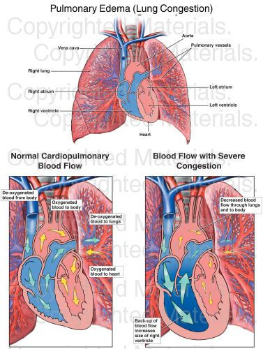 Pulmonary Edema (Lung Congestion) : Medical Exhibit