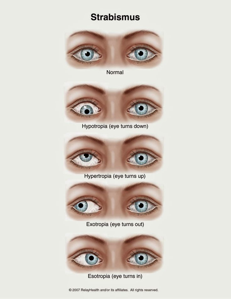 70 best Eye Learn images on Pinterest Optometry, Eye and Eye anatomy - presumed ocular histoplasmosis