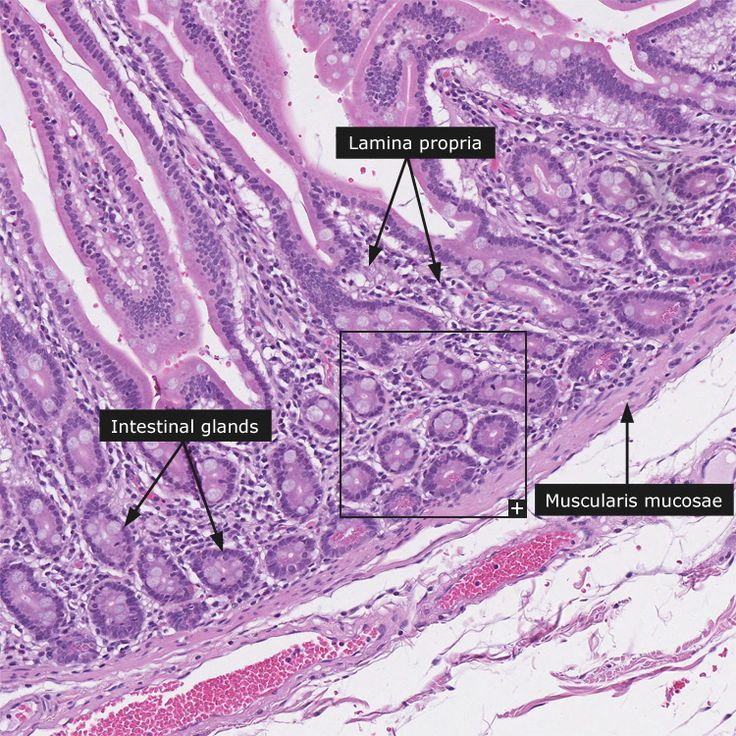 43 best Histology - Small Intestine images on Pinterest | Anatomy ...