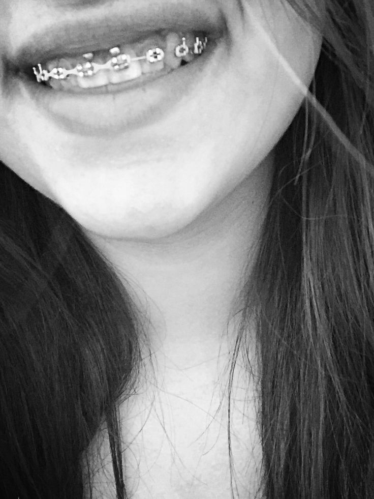 Smiley piercing with braces | Piercings | Piercings ...