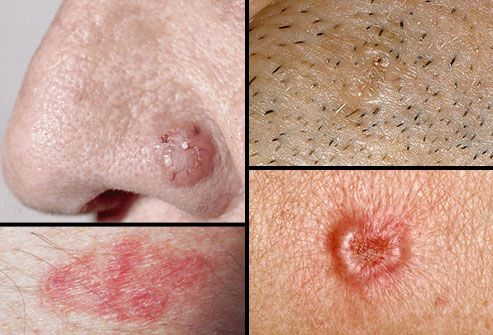 Do you know the warning signs of skin cancer?