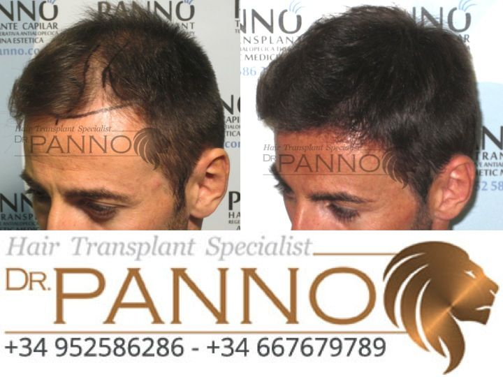 #TrasplanteCapilar #InjertoCapilar #alopecia #CaidaDePelo #calva #calvicie #DrPanno