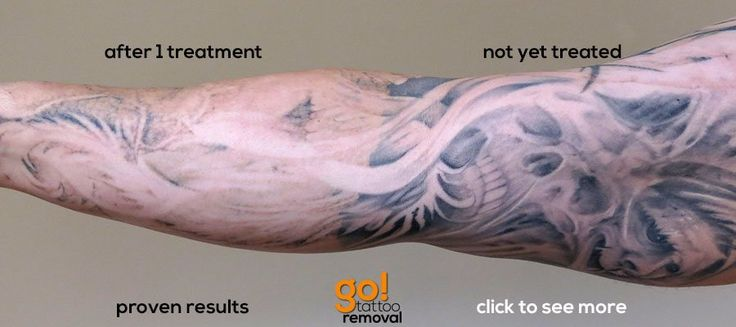 Go tattoo removal allentown pa laser tattoo removal