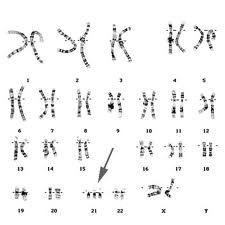 La técnica, basada en un nuevo algoritmo estadístico conocido como (FORTE), toma en cuenta los riesgos relacionados con la edad y el porcentaje de ADN fetal.    Un test no invasivo que se practica sobre una muestra de sangre materna es capaz de detectar, con un alto grado de precisión, el riesgo de que un feto presente