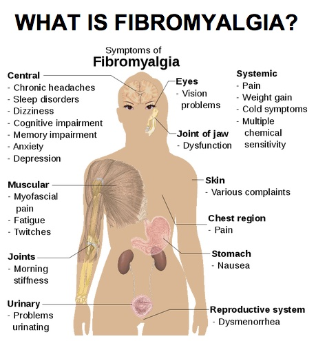 what is fibromyalgia essay Anti essays offers essay examples to help students with their essay writing our collection includes thousands of sample research papers so you can find almost any essay you want fibromyalgia essays and research papers.
