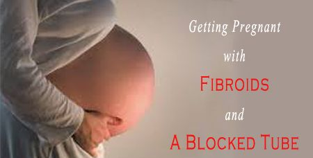 GETTING PREGNANT WITH FIBROIDS AND A BLOCKED TUBE – IS IT POSSIBLE? - 247 Best Sellers Reviews
