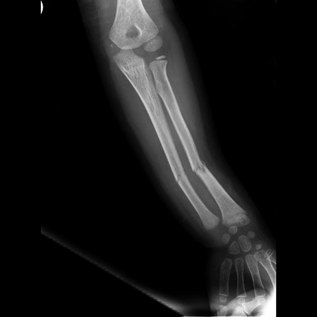 Greenstick fractures involving both radius and ulna | Radiology Case | Radiopaedia.org