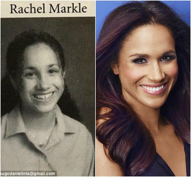 Meghan Markle's Shocking Plastic Surgery Transformation ...