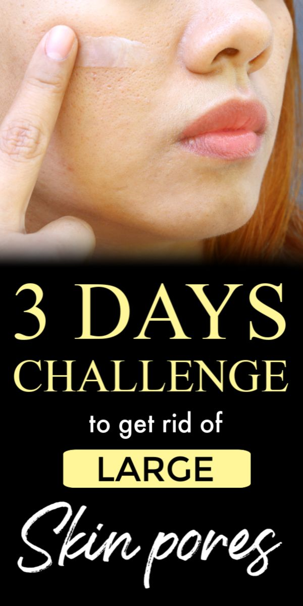 3 days Challenge to get rid of large open skin pores