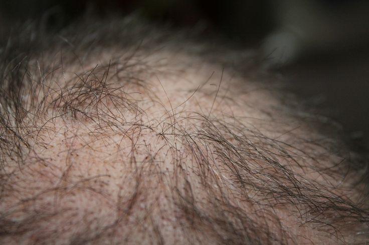 Biotoxins and Hair Loss
