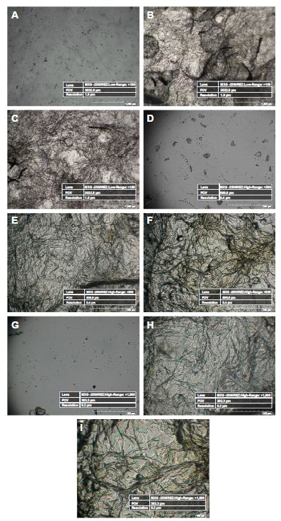 Figure 6 Hirox 2D images of control, 12 hours extract-coated mPE samples and 24 hours extract-coated mPE samples.