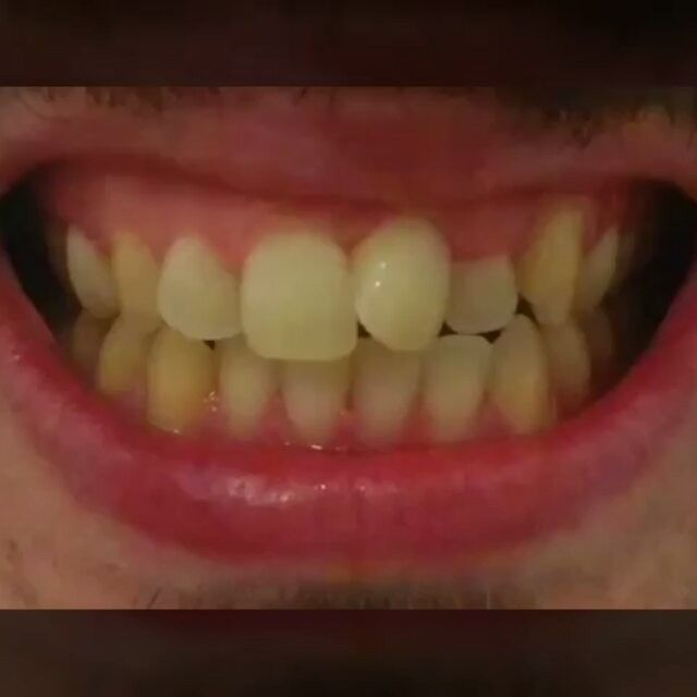 Брекеты *** Braces.  #braces#veneers#teeth#tooth#dentist#andorra#minsk#brussels#bosniaandherzegovina#sofia#zagreb#prague#copenhagen#tallin#helsinki#paris#berlin#athens#rome#budapest#riga#vaduz#luxembourg#warsaw#belgrade#bratislava#madrid#bern#stockholm#london