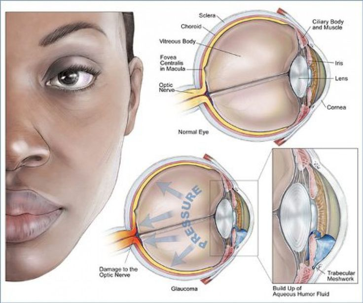 Symptoms of Cataracts Cataracts are cloudy areas in the lens of the eye that can cause changes in vision. Symptoms of cataracts include cloudy or fuzzy vision as well as sensitivity to glare. Cataracts are treated with surgery. Cataracts are the main cause ofimpaired vision worldwide.