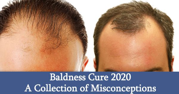 Baldness Cure 2020: A Collection of Misconceptions