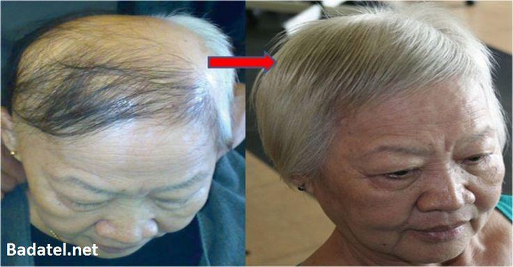 Máte problémy s vypadávaním vlasov? Vyskúšali ste mnohé domáce recepty? Vyskúšajte toto vlasové sérum, ktoré obnoví vlasové folikuly.