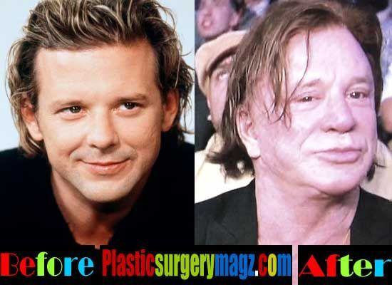 Worst Celebrity Plastic Surgery Botoxforehead Celebrity