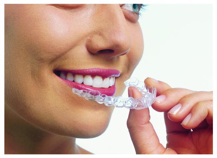 Invisalign, l'ortodonzia invisibile per adulti Invisalign
