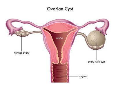 Clean The Ovary Cysts With The Best Recipes, Ovary Cyst Cause Bloating, Lower Abdominal Pain, Or Lower Back Pain   Herbs Remedies