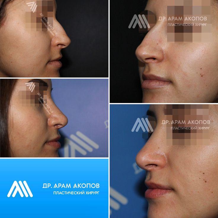 Пластика носа - ринопластика 1 год спустя 👌🏼