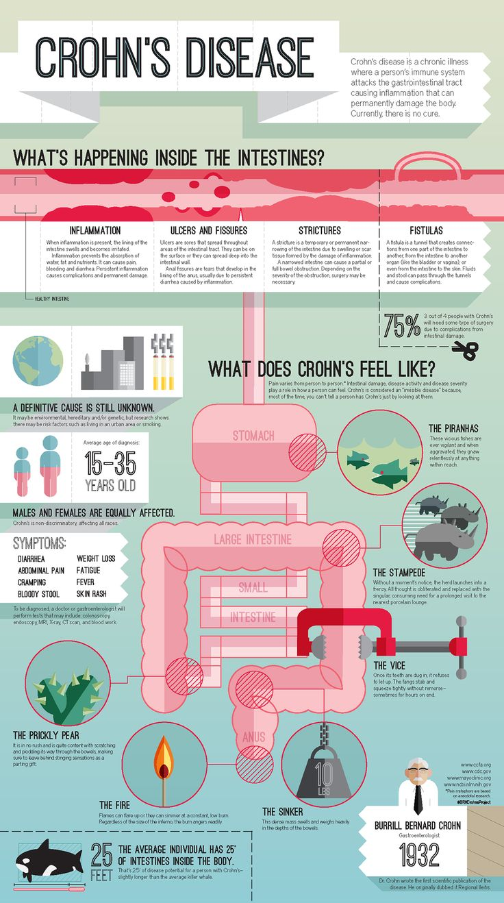 An infographic about Crohn's Disease and its effects on the body. Design for Social Good- a course at the University of North Florida taught by Elizabeth Nabi.Designer, Illustrator, and Writer - B. R. KellerWriter and Editor - Wyatt Hudson Hall