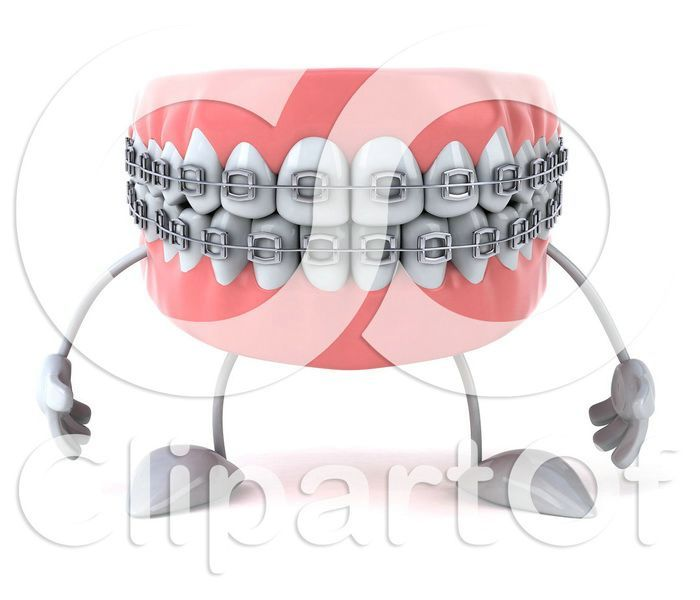 17 Best images about Orthodontic Braces on Pinterest | Braces for ...