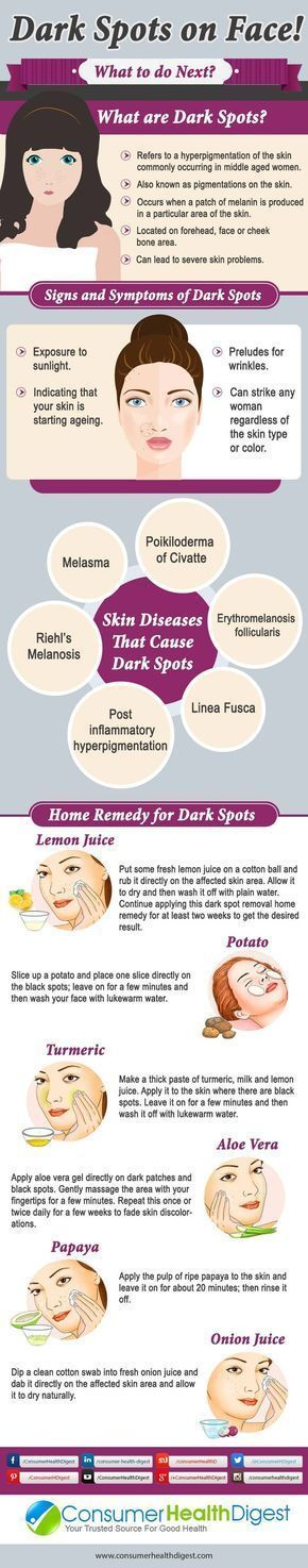 Great natural tips to remove dark spots on your skin. Awesome DIY skin care guide! Love it! #Treatingskindarkspots