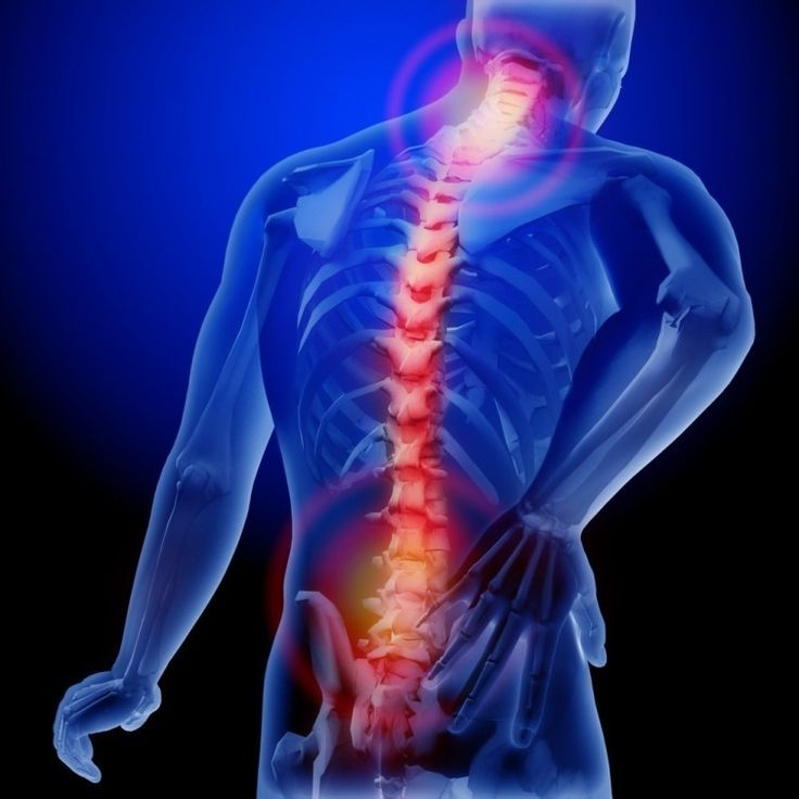 Cómo 5 cuentos cambiarán la mejor manera de acercarse dolor de espalda baja