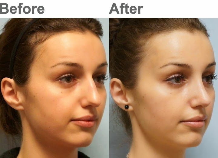 16 best Plastic Surgery images on Pinterest Nose jobs - plastic surgery consultant sample resume