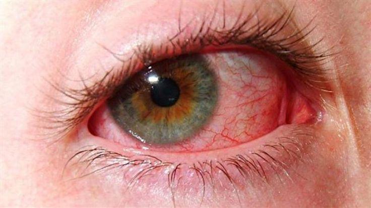En finir avec les yeux rouges et gonflés grâce à cette astuce noté 5 - 1 vote Trop de stress, trop de pollution, trop de soleil, trop de fumée, des produits cosmétiques agressifs… Les yeux sont mis à rude épreuve, pas étonnant qu'ils se rebellent parfois en se gonflant et en devenant rouges. Avant qu'il …